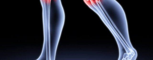 Что лучше для жестких суставов?