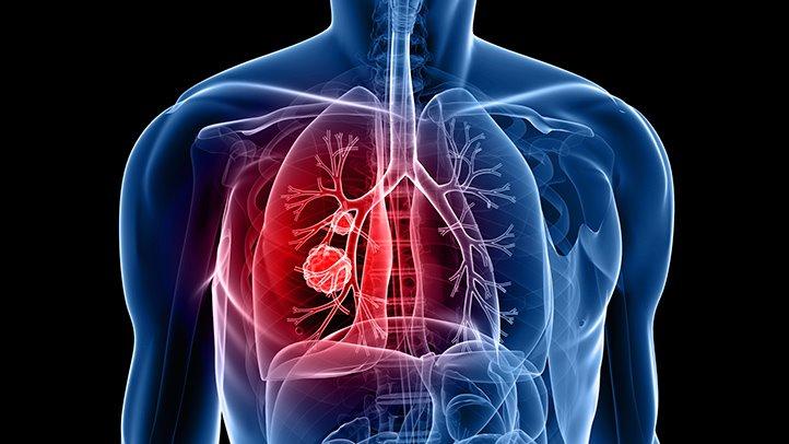 Добавленный к химиотерапии, этот препарат удваивает выживаемость рака легких