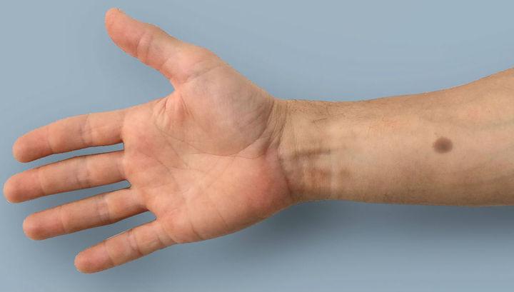 «Биомедицинская татуировка» может предупредить о ранней стадии рака